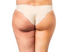 Meister Kosmetik: Sehr effiziente Cellulite-Behandlung. Dieses Ergebnis in nur 12 Wochen!