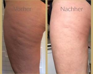 Meister Kosmetik: einzigartige Cellulite-Kosmetik, zeitlos schön mit Dr. Jucheim Kosmetika